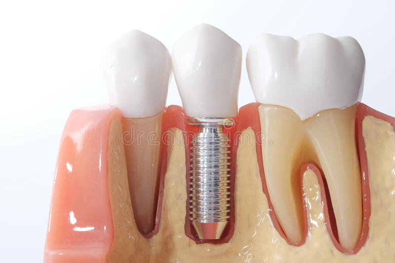 普通牙齿牙模型 库存图片