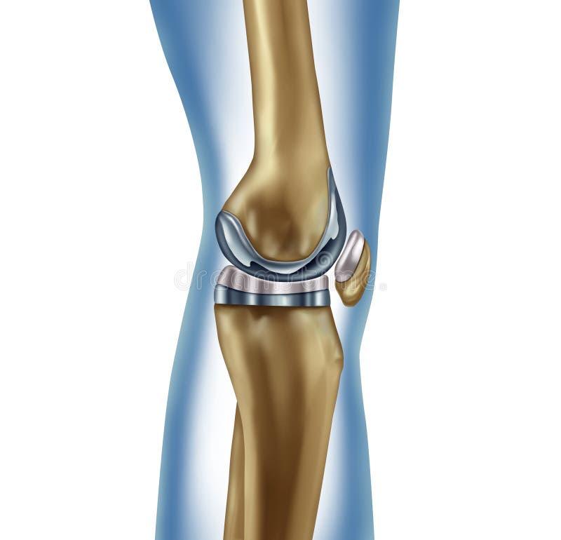 替换膝盖 向量例证