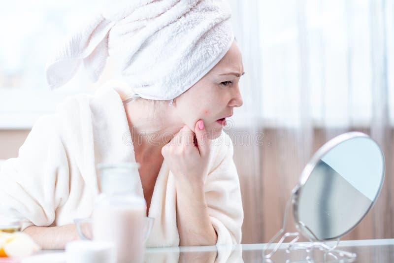 有一块毛巾的美丽的不快乐的年轻女人在她的头查出在她的面孔的粉刺 卫生学和喜欢皮肤 库存照片