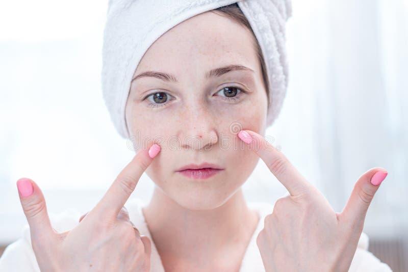 有一块毛巾的美丽的不快乐的年轻女人在她的看在她的面孔的头粉刺 卫生学和喜欢皮肤 库存图片