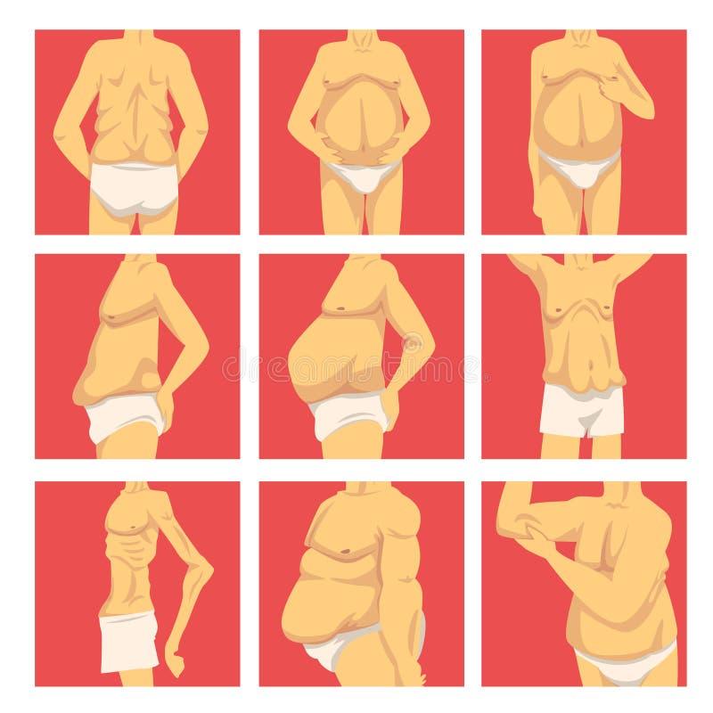 有下垂腹部集合的男性躯干,在减肥以后的人体,肥胖病和不健康的吃问题传染媒介 向量例证