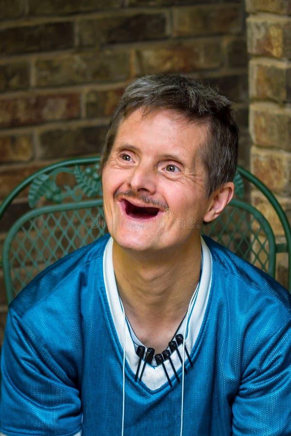 有下来综合症状和没有牙令人愉快的微笑的更老的人 免版税库存照片
