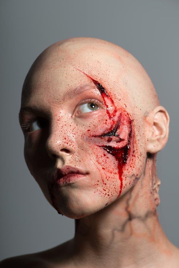 有为操作准备的砍得恨深的伤口的妇女 免版税图库摄影