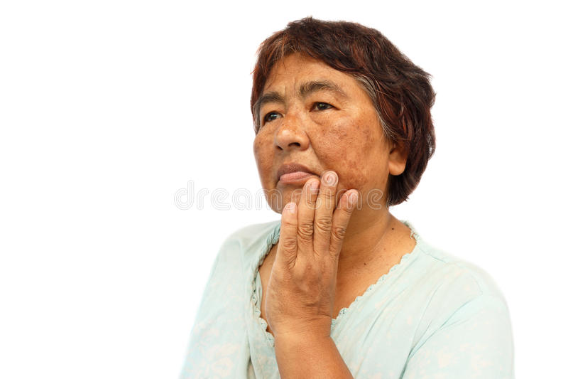 有伤疤、粉刺、痣和皱痕的老农村妇女在她的面孔 库存照片