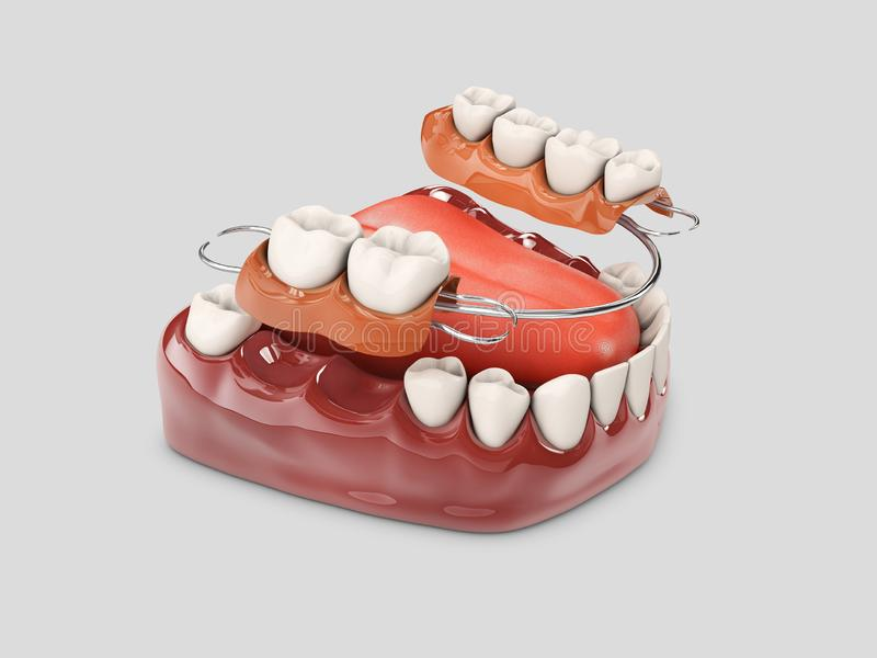 有假牙的人的牙 3d例证被隔绝的白色 库存例证