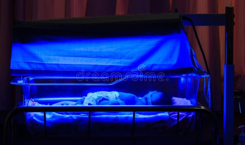 有出生黄疸和高胆红素hyperbili的新出生的婴孩 库存图片
