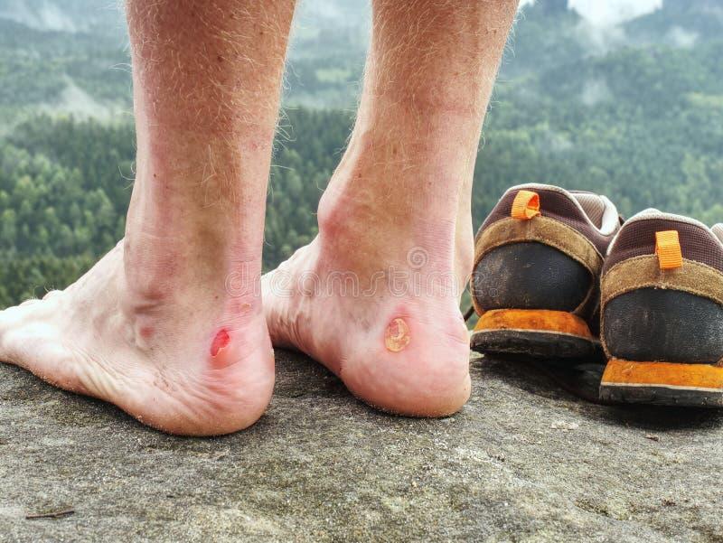 有可怕的水泡的赤裸男性腿在峰顶 受伤的攀岩运动员脚跟 免版税库存照片