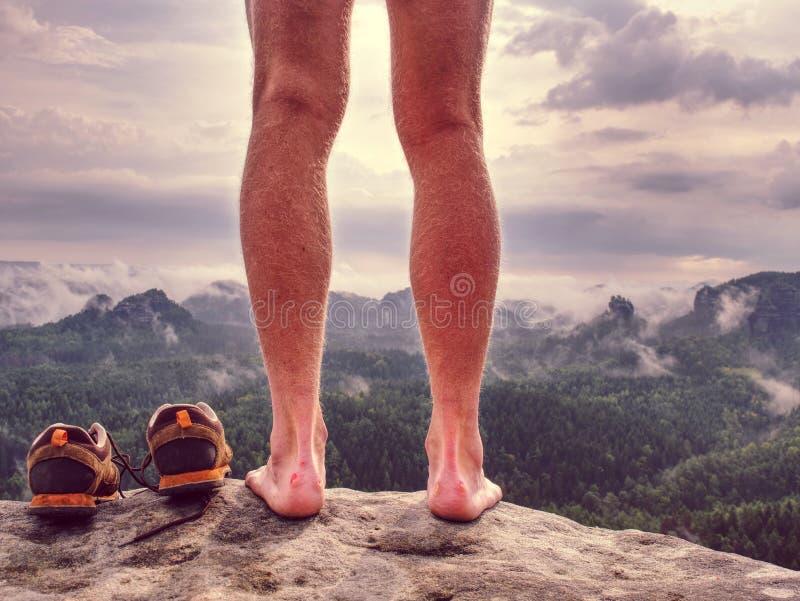有可怕的水泡的赤裸男性腿在峰顶 受伤的攀岩运动员脚跟 免版税图库摄影