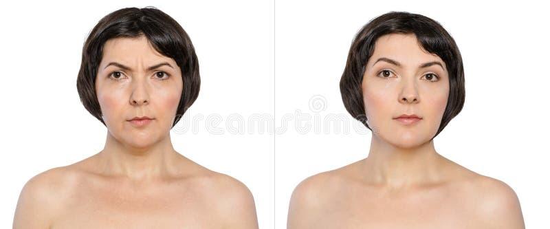有和没有老化燎的妇女,双下巴,忧虑皱痕,在化妆或塑料做法前后的鼻唇的折叠, 库存图片