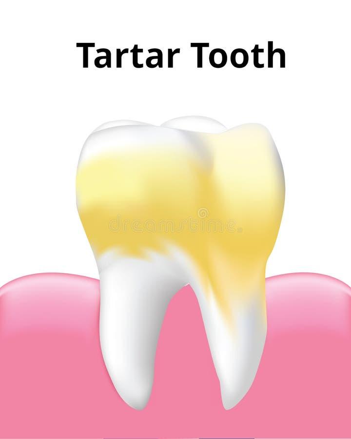 有在白色背景隔绝的胶的齿垢牙 皇族释放例证