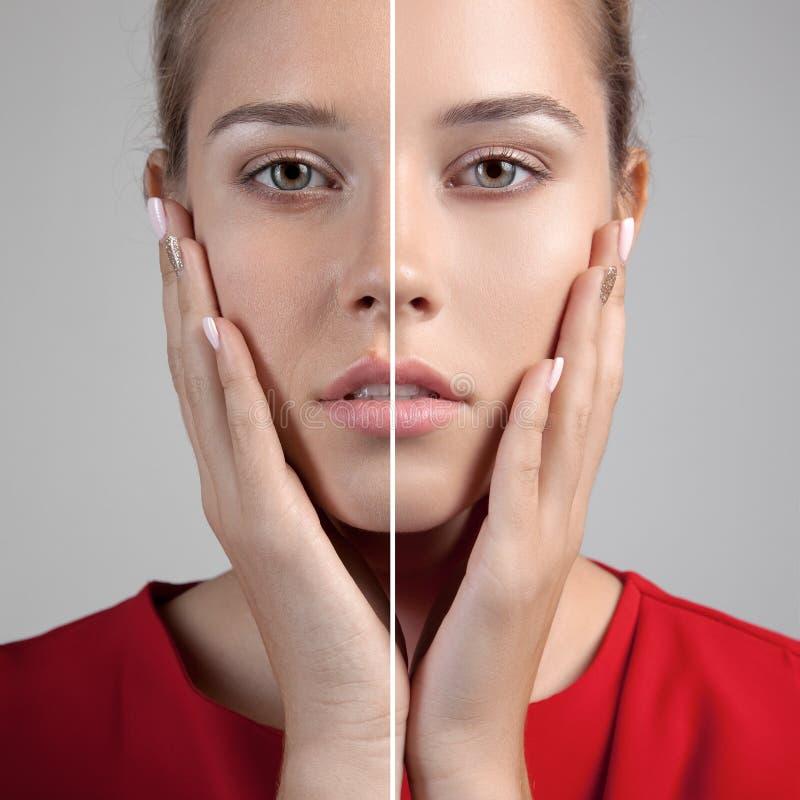 有多斑点的皮肤和愈合的软的皮肤的妇女 免版税库存图片