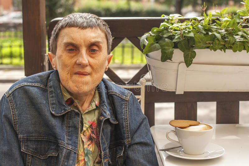 有大脑麻痹特写镜头画象的残疾人在咖啡馆 免版税图库摄影