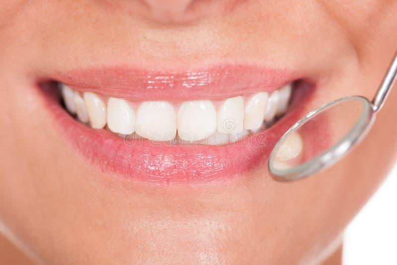 有完善的白色牙的微笑的妇女 免版税库存图片