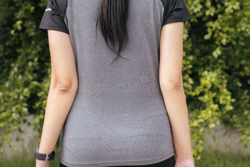 有干性皮肤的妇女在手肘和胳膊,身体和医疗保健概念 库存照片
