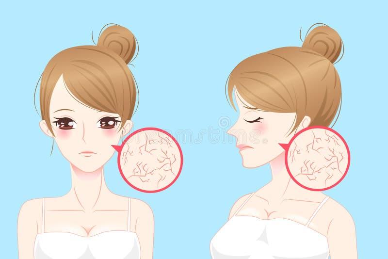 有干燥的皮肤的动画片妇女 库存例证