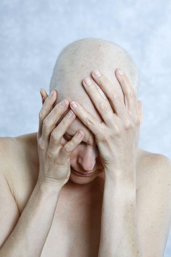 有成为秃头的头的女性癌症患者在手上 免版税库存照片