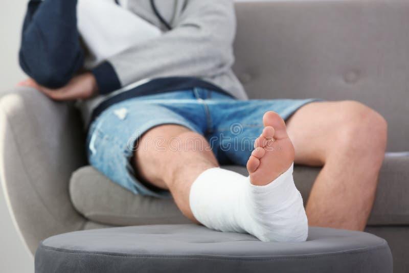 有断腿的年轻人在塑象坐沙发 库存图片