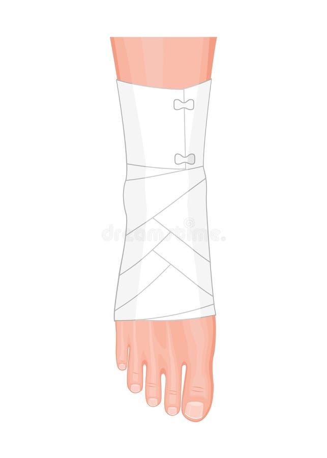 有有弹性绷带的脚腕 向量例证