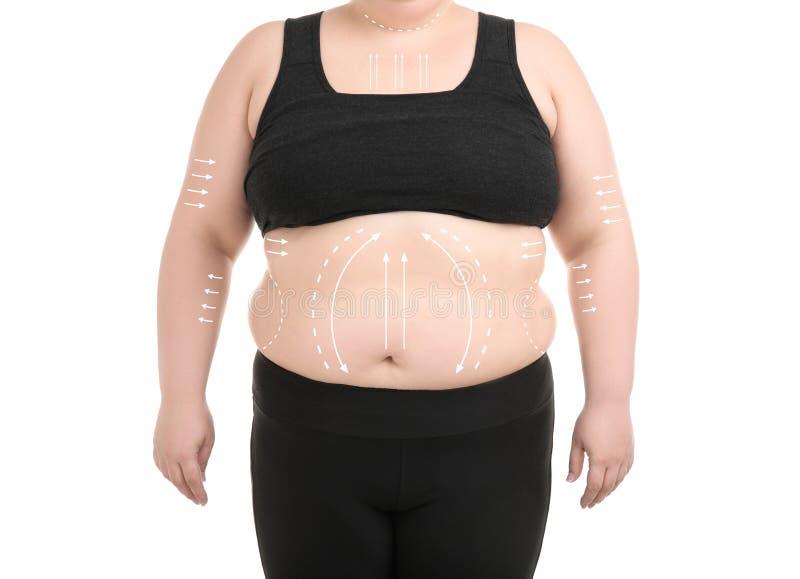 有标记的超重妇女皮下脂肪切除术操作白色背景的 整容外科 库存照片