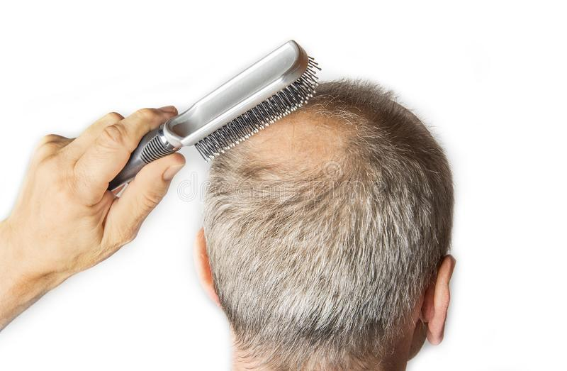 有梳子的秃头人 掉头发概念 图库摄影
