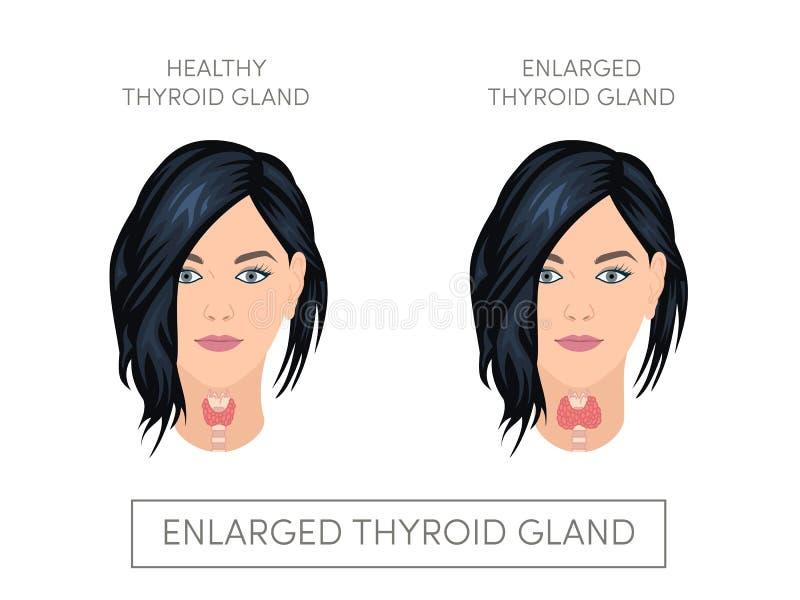 有正常和扩大的甲状腺的女性 皇族释放例证