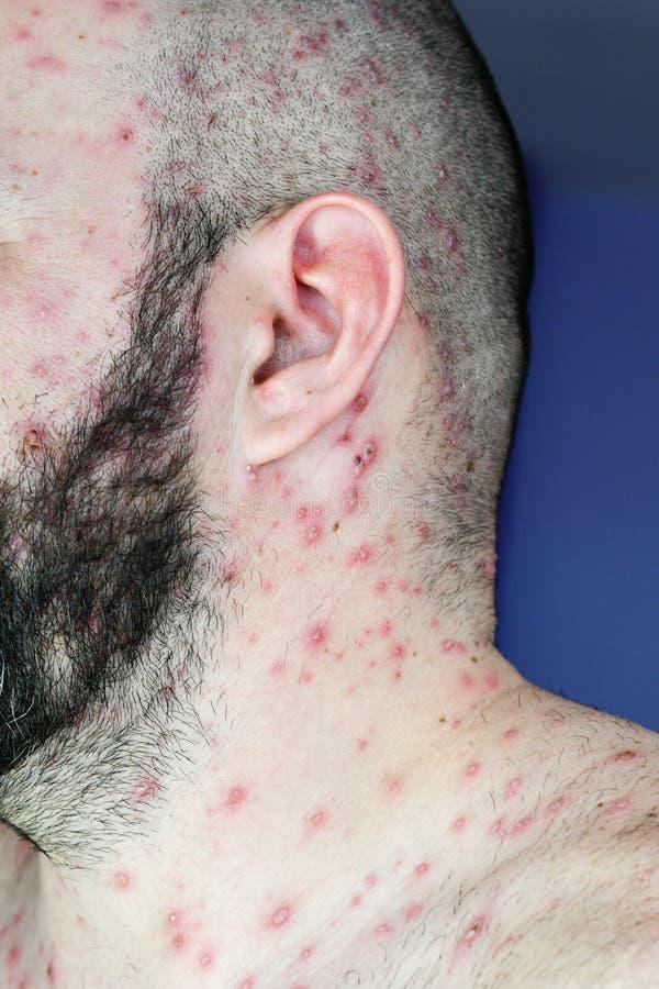 有水痘的人 库存图片