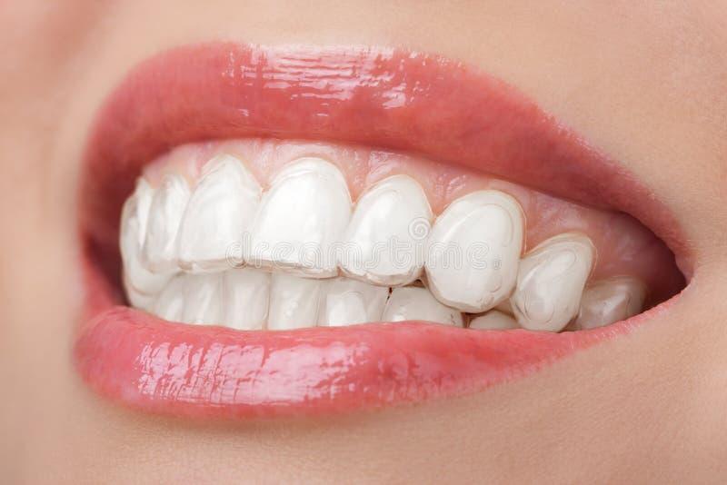 有漂白的牙齿盘子的微笑牙 免版税库存图片