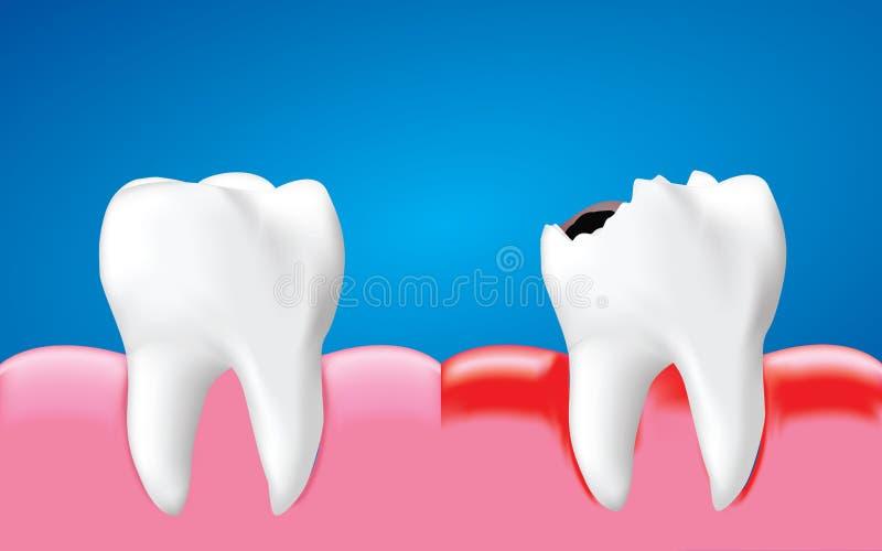 有炎症的龋齿和健康牙,牙齿保护概念,现实传染媒介 皇族释放例证