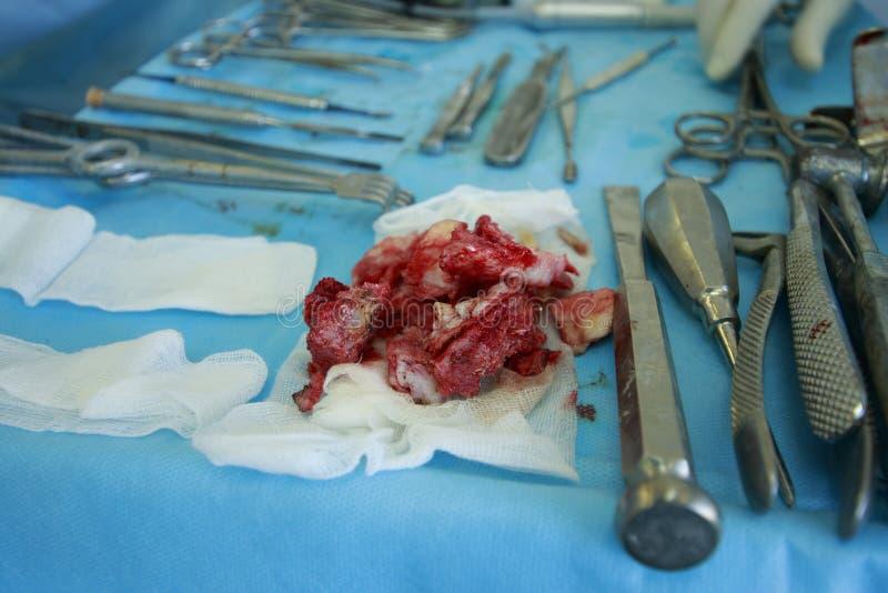 有牙的被去除的下颌骨头 免版税图库摄影