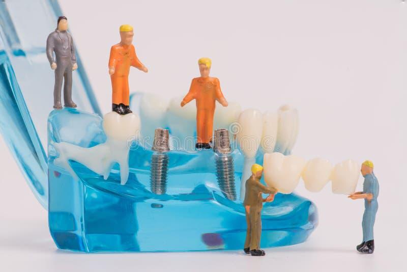 有牙齿安放的微型人 库存图片