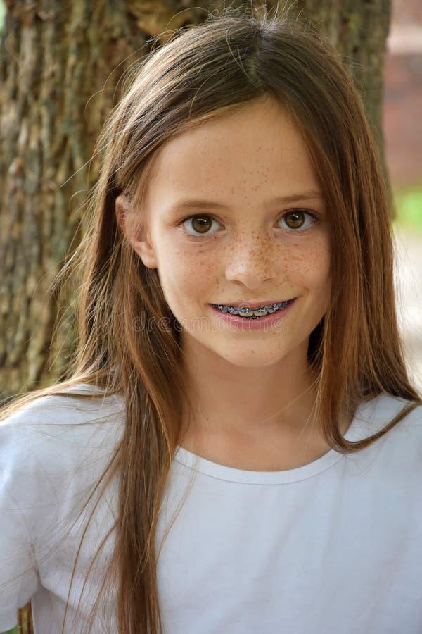 有牙齿括号的女孩 库存照片