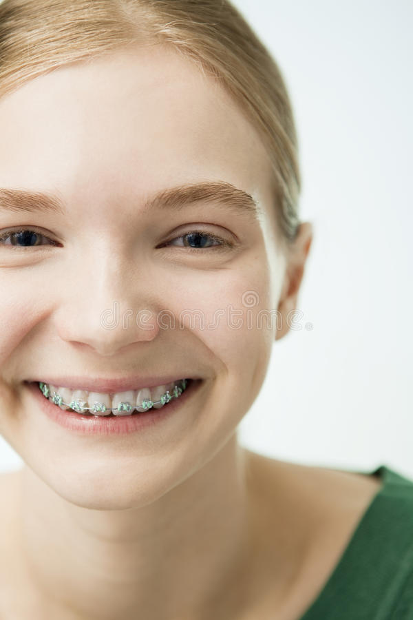 有牙齿括号的微笑的女孩 免版税库存照片
