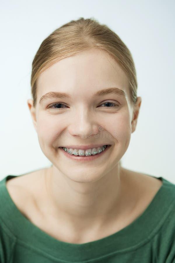 有牙齿括号的微笑的女孩 库存图片