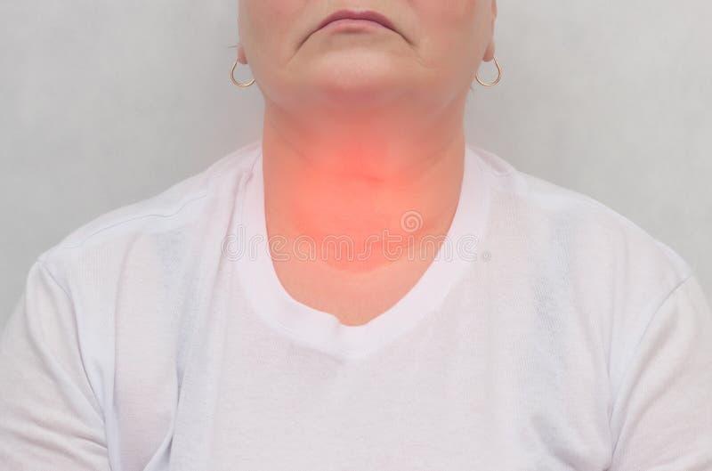 有甲状腺的白色背景的妇女,在甲状腺,特写镜头,内分泌系统的结 免版税库存照片