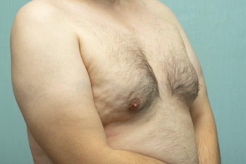 有男子女性型乳房的肥胖白中年人, 免版税图库摄影