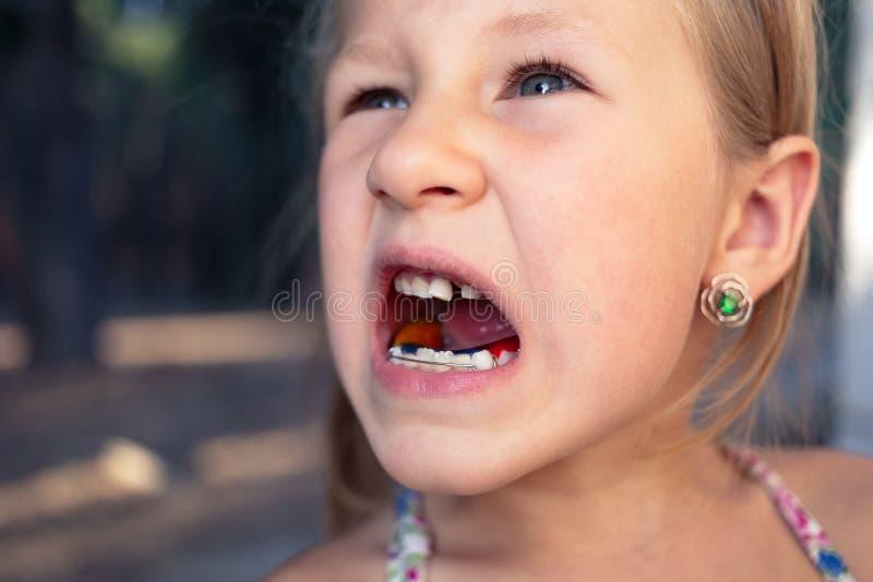 有畸齿矫正术装置和歪牙的女孩 颤抖的牙 库存图片