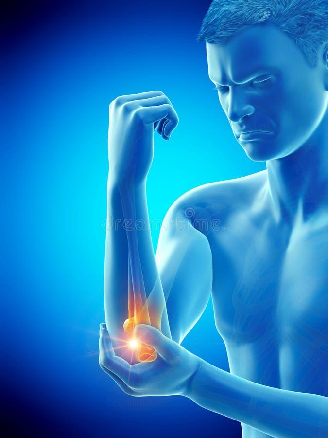 有痛苦的手肘的一个人 向量例证
