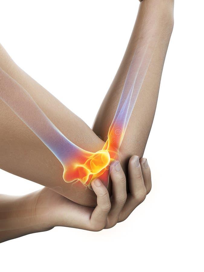 有痛苦的手肘的一个人 库存例证