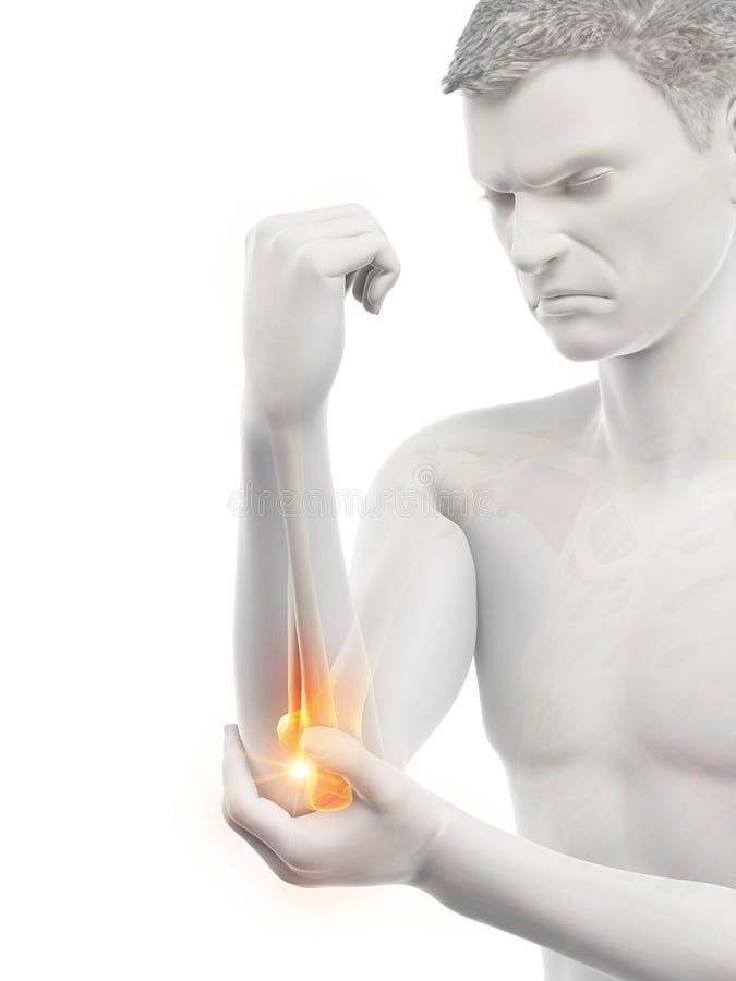 有痛苦的手肘的一个人 皇族释放例证