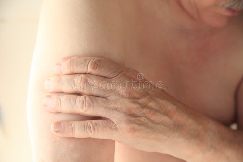 有痛苦的膀臂的人 免版税库存图片