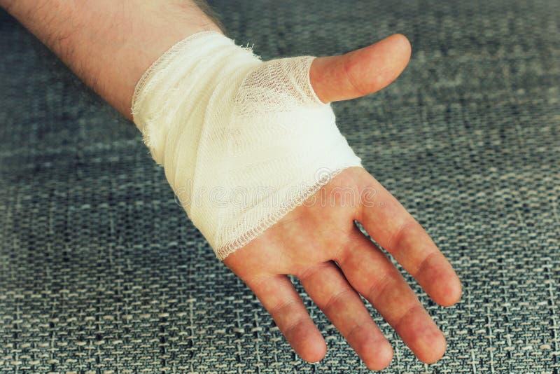 有白色纱绷带的受伤的痛苦的手 免版税库存照片