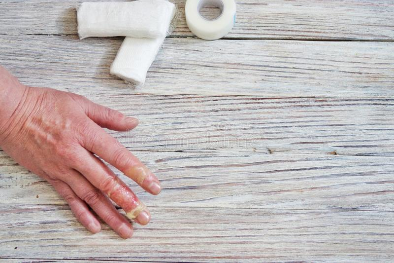 有皮肤和手指,与开水的伤害,事故的烧伤的妇女在家,粗心大意的行为与 库存照片