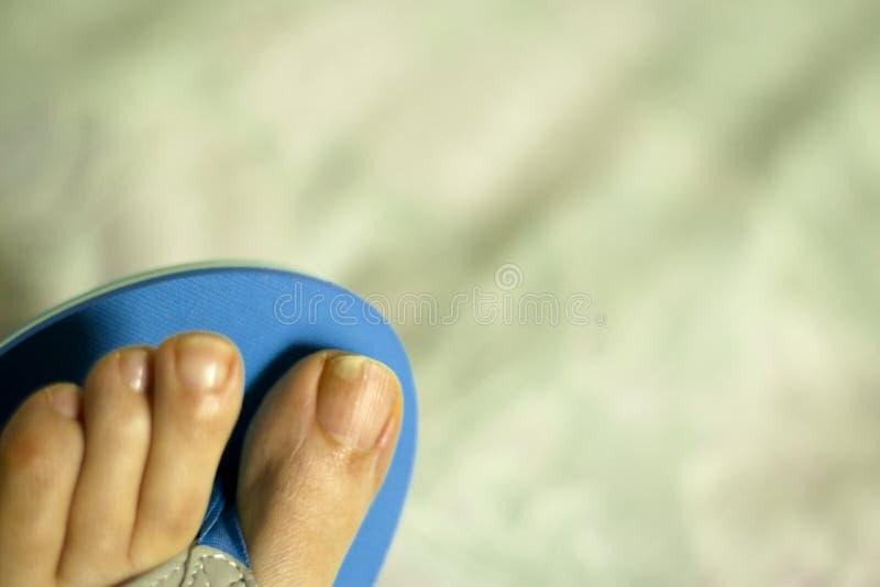 有真菌的趾甲 库存照片