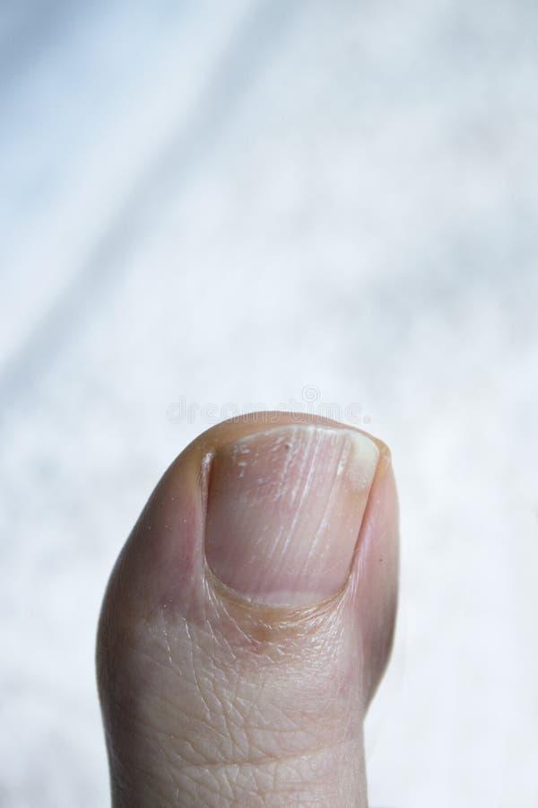 有真菌的趾甲 图库摄影