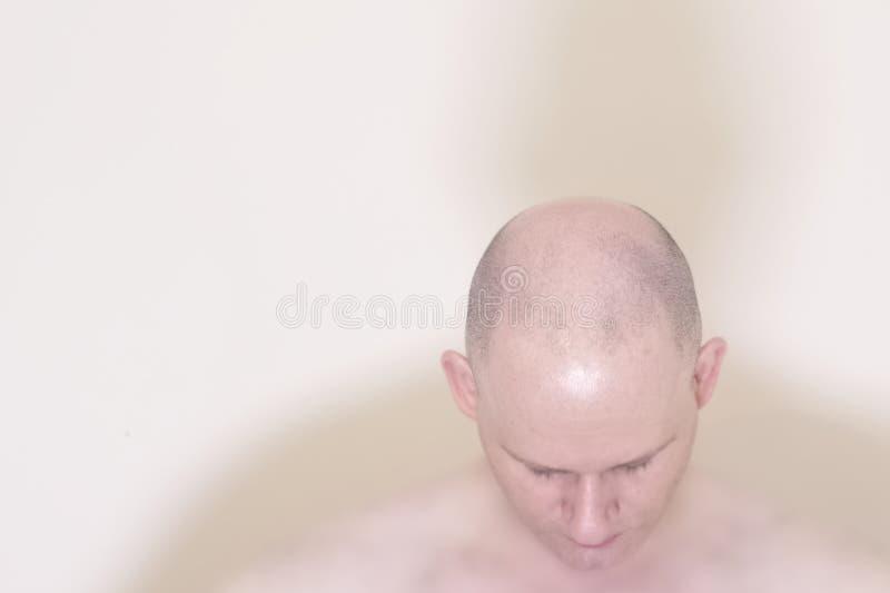 有秃头的掉头发男性样式光秃人在上面 免版税库存照片