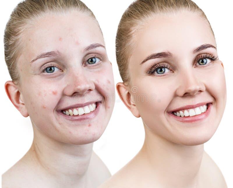 有粉刺的妇女在治疗和构成前后 免版税库存照片