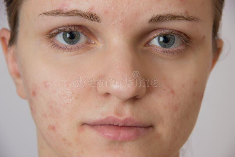 有粉刺的美丽的女孩在他的面孔和后面在whi 库存照片