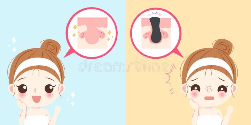有粉刺问题的妇女 向量例证
