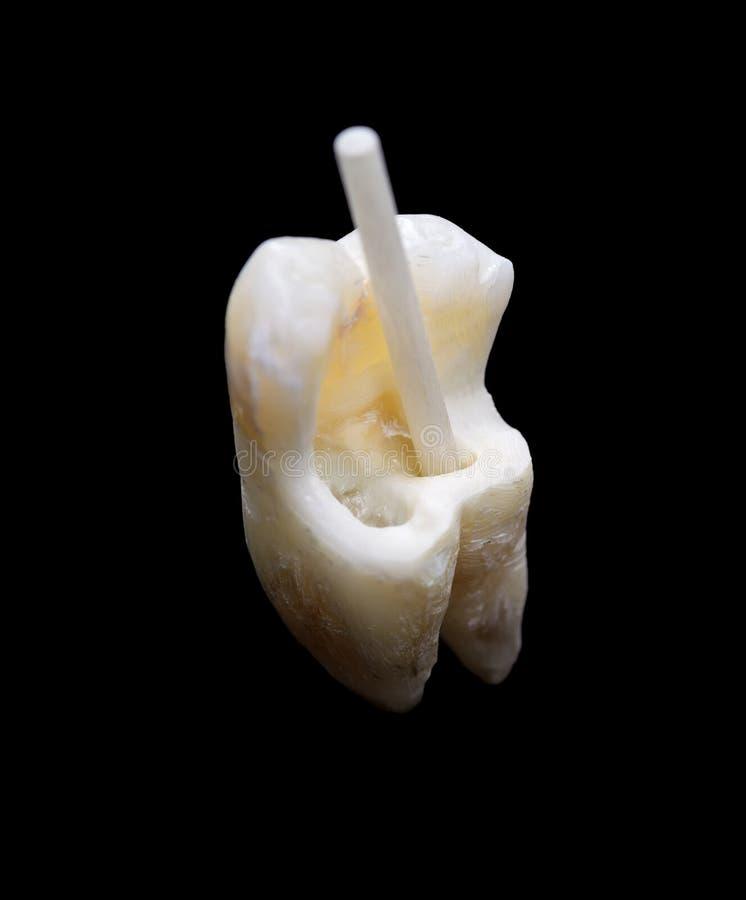有纤维树脂过帐的人力牙 免版税库存图片