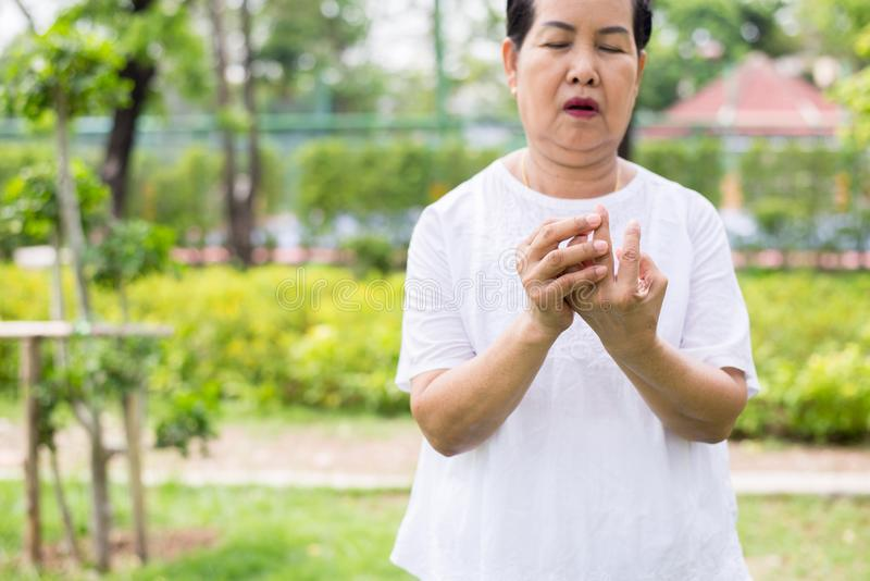 有脚气病在手边或手指的,导致神经的炎症的疾病年长亚裔女性 免版税库存照片